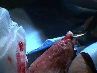 澳大利亞輸精管切除術未切割的男性準備,剃須,訓練磁帶