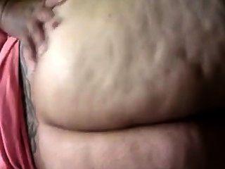 脂肪脂肪團