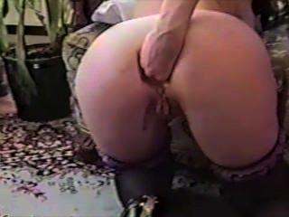 肛門拳頭灌腸